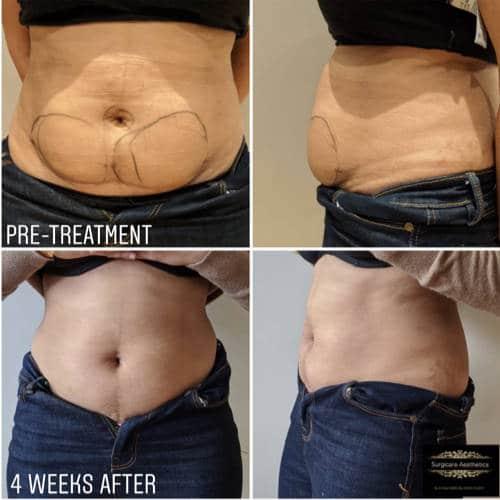 fat dissolving treatment