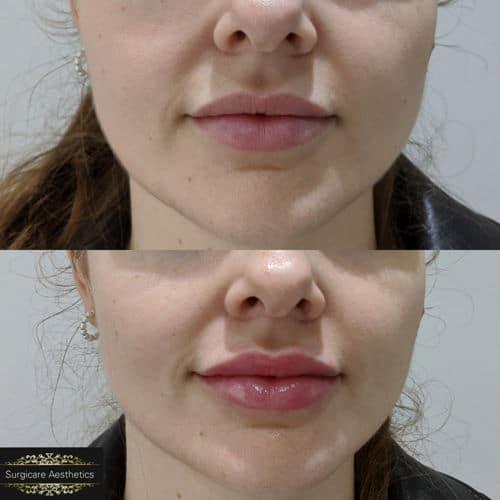 before & after lip enhancement