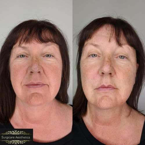 Nasolabial Line Treatment Before and After