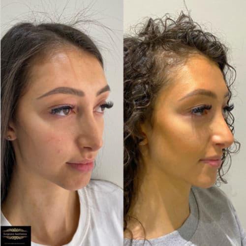 cheek filler treatment