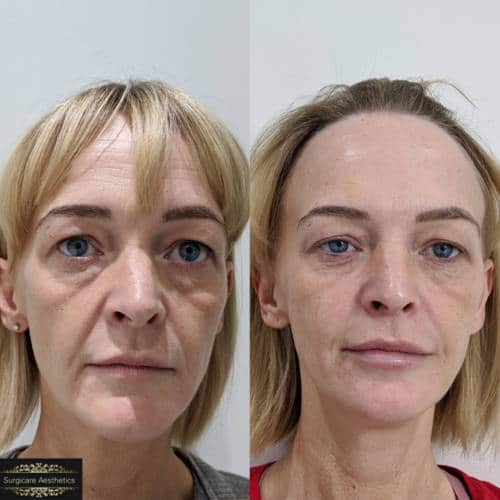 nasolabial before and after