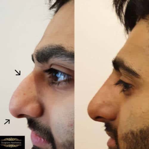 nose filler treatment