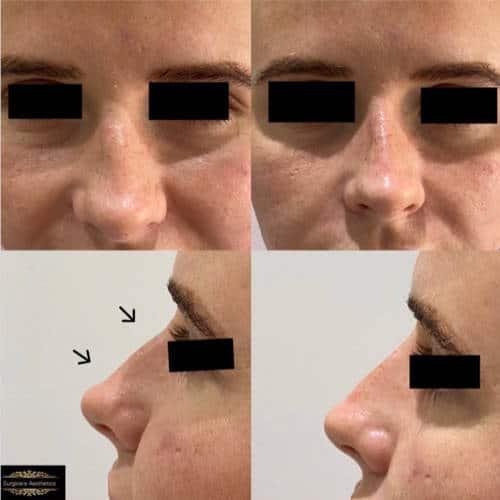 non-surgical rhinoplasty treatment